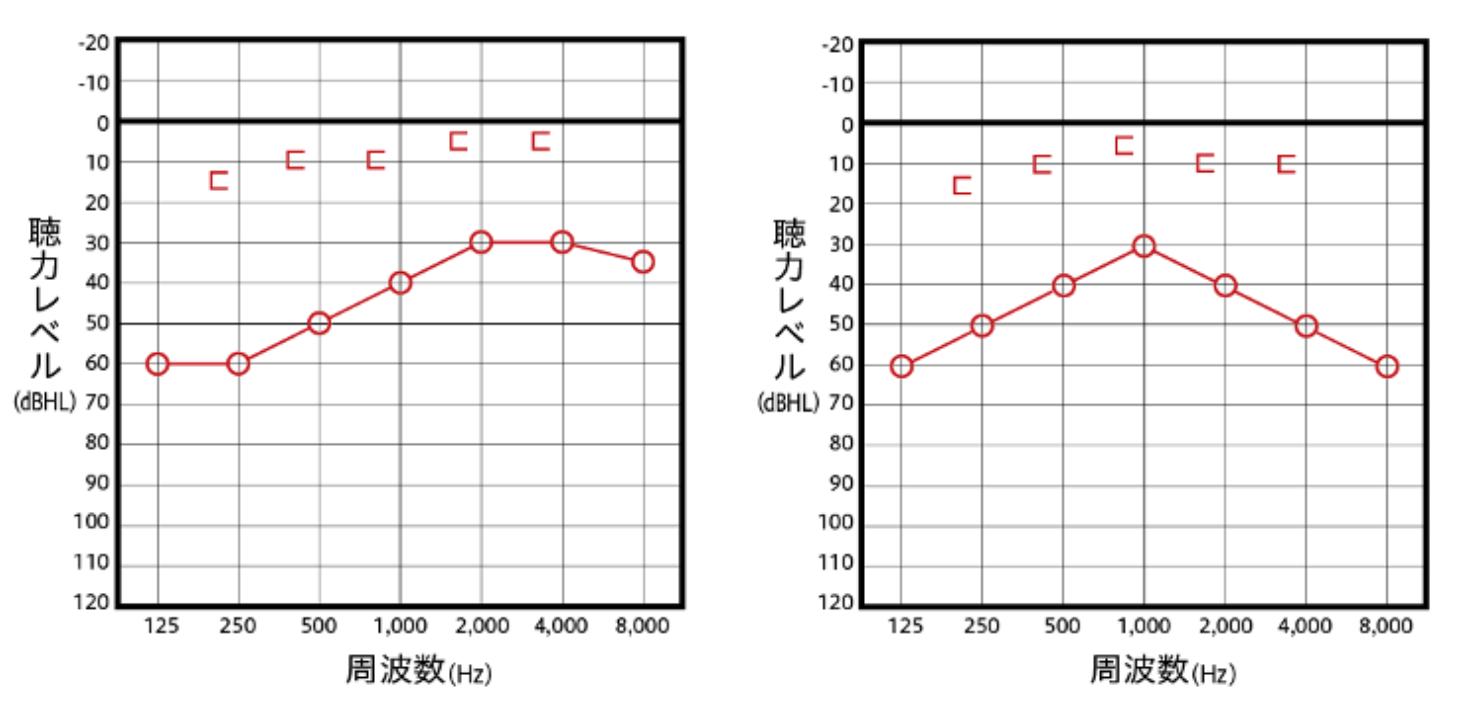 伝音性難聴の主なオージオグラム例