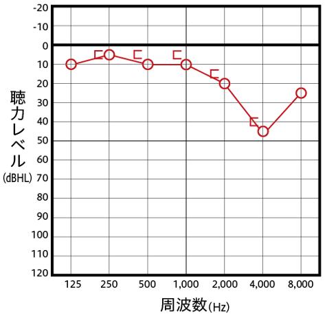 感音性難聴の主なオージオグラム例